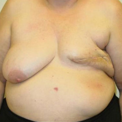 DIEP Flap Breast Reconstruction Before and After