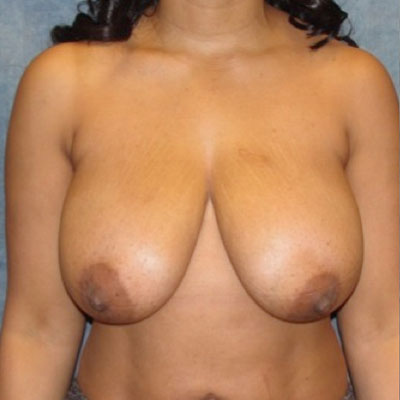 Breast Reduction Northern VA Before and After