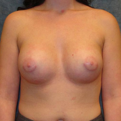 Tuberous breast augmentation before and after